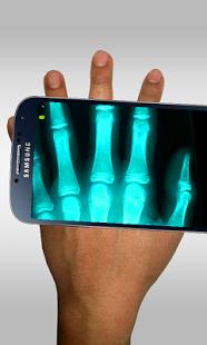 نرم افزار اندروید اسکنر اشعه ایکس - Xray Scanner Prank